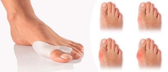 Корректор большого пальца ноги - Valgus Pro Вальгус Про Medicus
